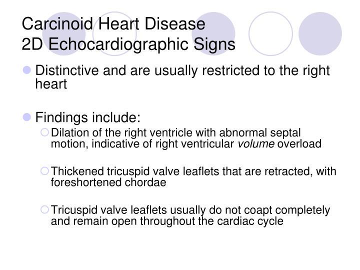Carcinoid Heart Disease