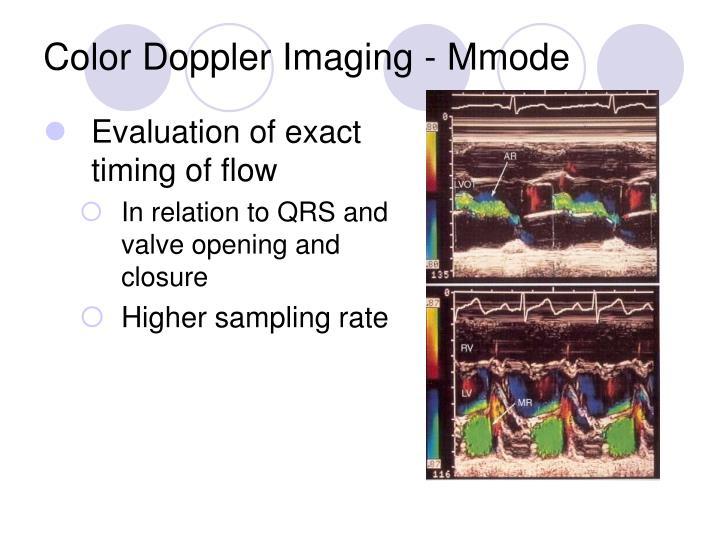 Color Doppler Imaging - Mmode