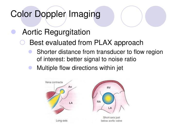 Color Doppler Imaging