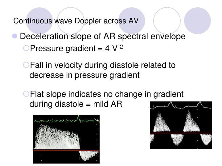 Continuous wave Doppler across AV
