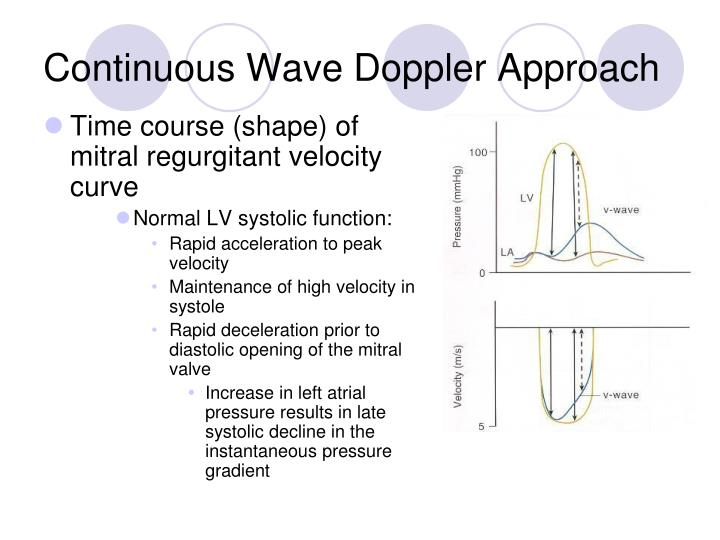 Continuous Wave Doppler Approach