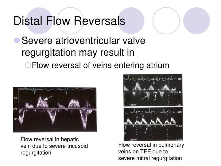 Distal Flow Reversals