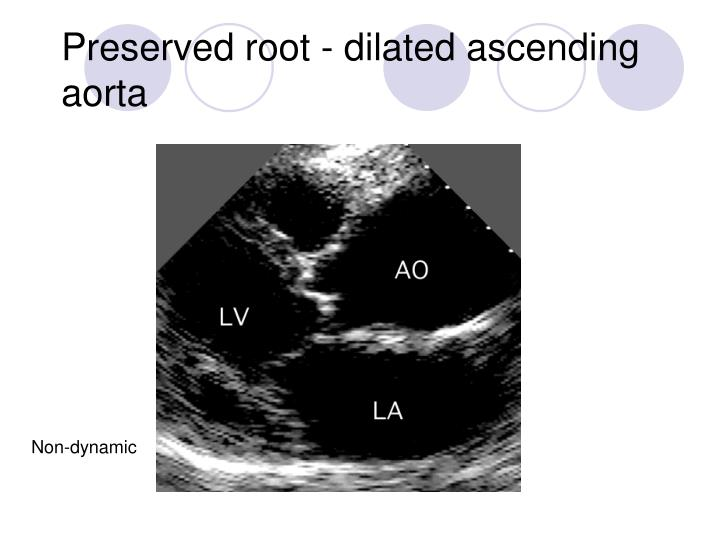 Preserved root - dilated ascending aorta