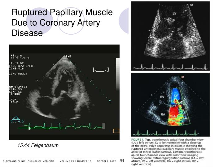 Ruptured Papillary Muscle Due to Coronary Artery Disease