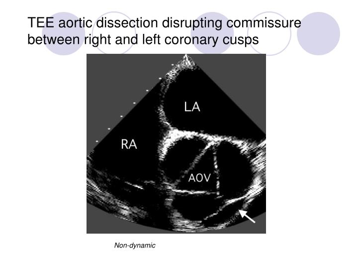 TEE aortic dissection disrupting commissure