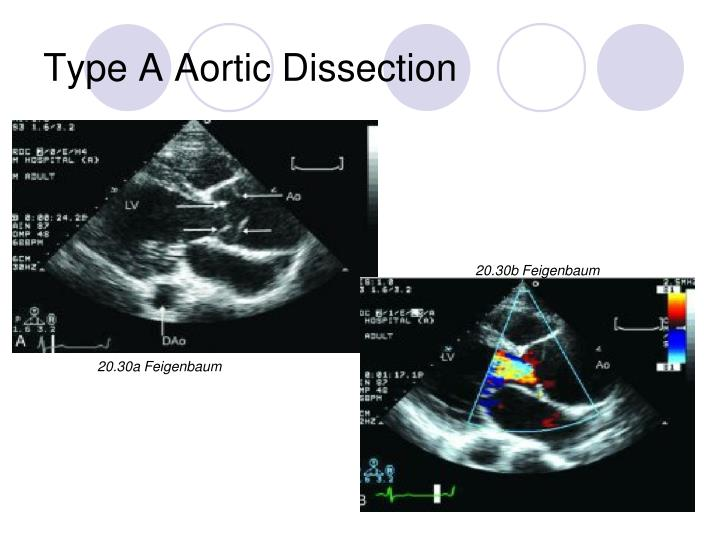 Type A Aortic Dissection