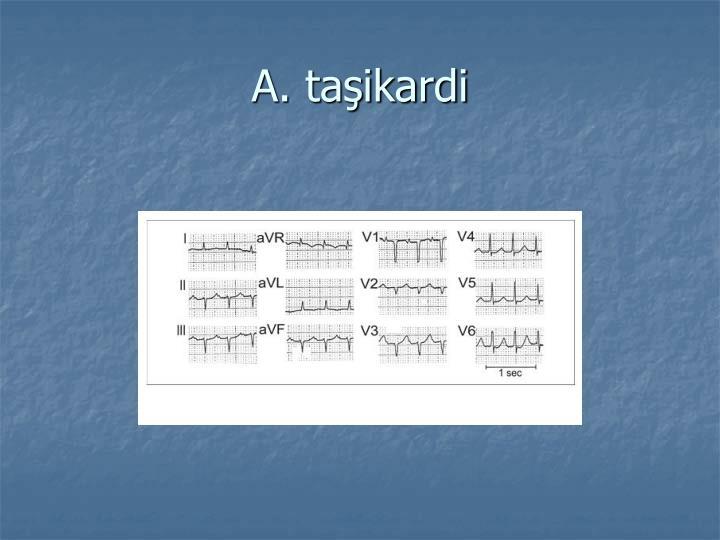 A. taşikardi