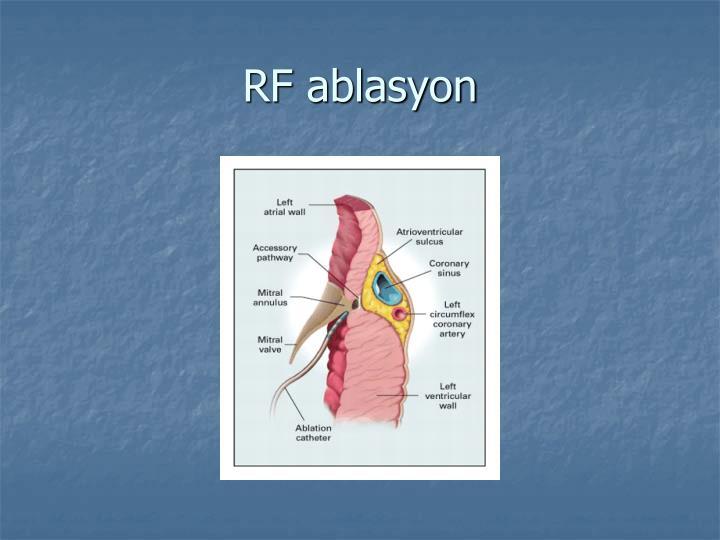 RF ablasyon