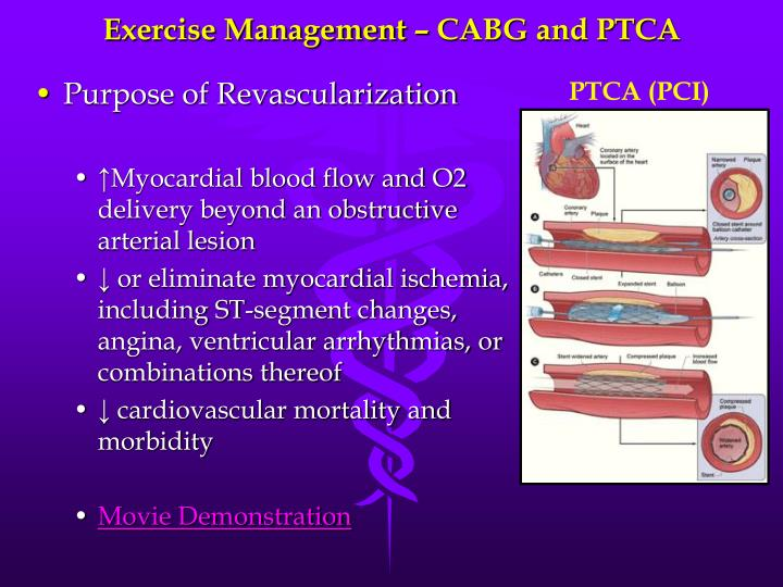 percutaneous transluminal coronary angioplasty essay Abstract to examine the role of antiplatelet therapy in the prevention of arterial re-stenosis after percutaneous transluminal coronary angioplasty (ptca), we conducted a randomized, double-blind, placebo-controlled study in 376 patients.