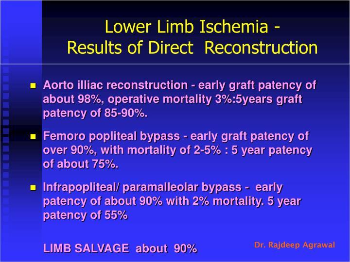 Lower Limb Ischemia -