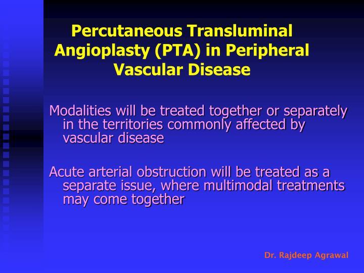 Percutaneous Transluminal Angioplasty (PTA) in Peripheral Vascular Disease