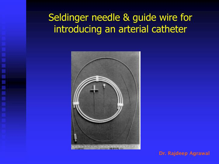 Seldinger needle & guide wire for introducing an arterial catheter