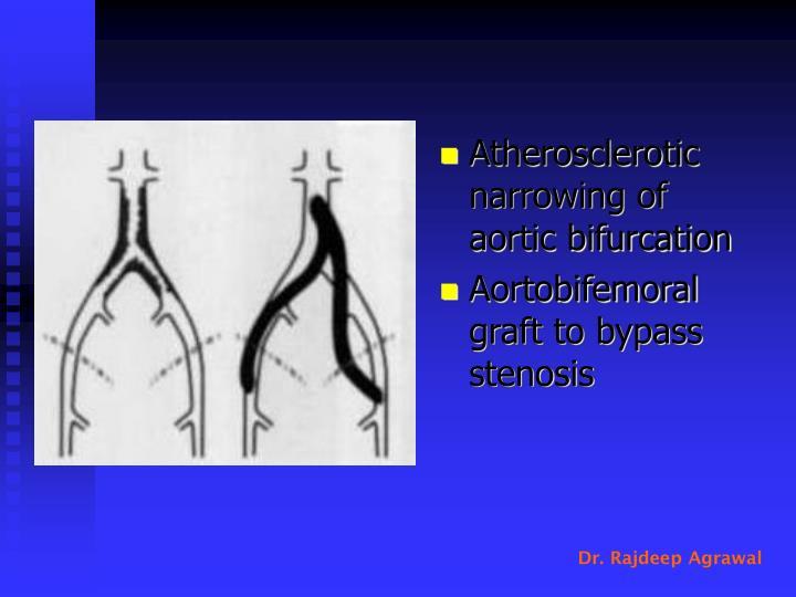 Atherosclerotic narrowing of aortic bifurcation