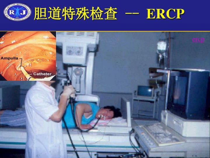 胆道特殊检查