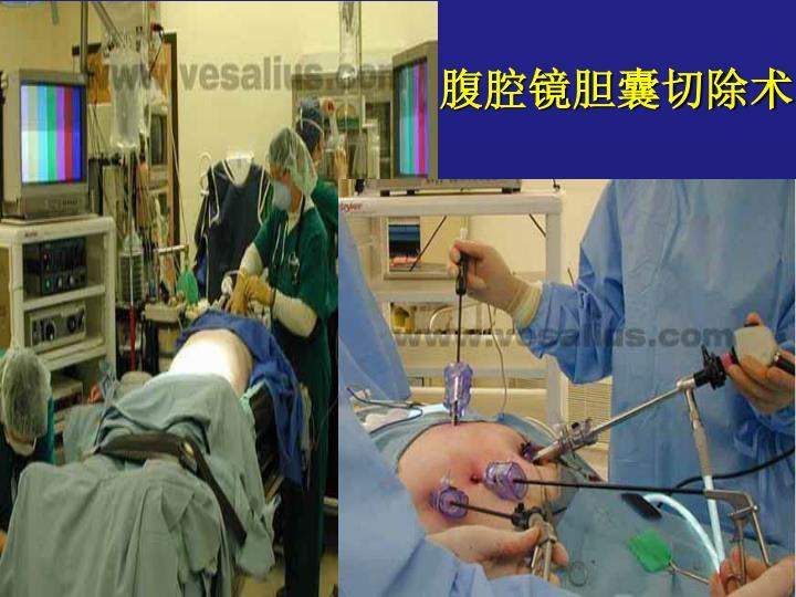 腹腔镜胆囊切除术