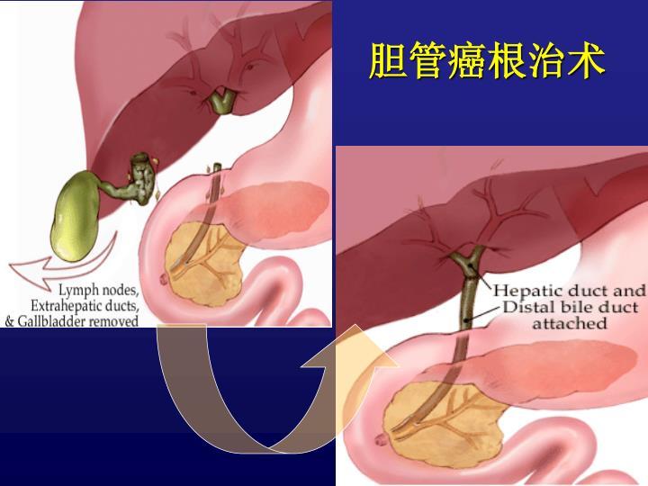 胆管癌根治术