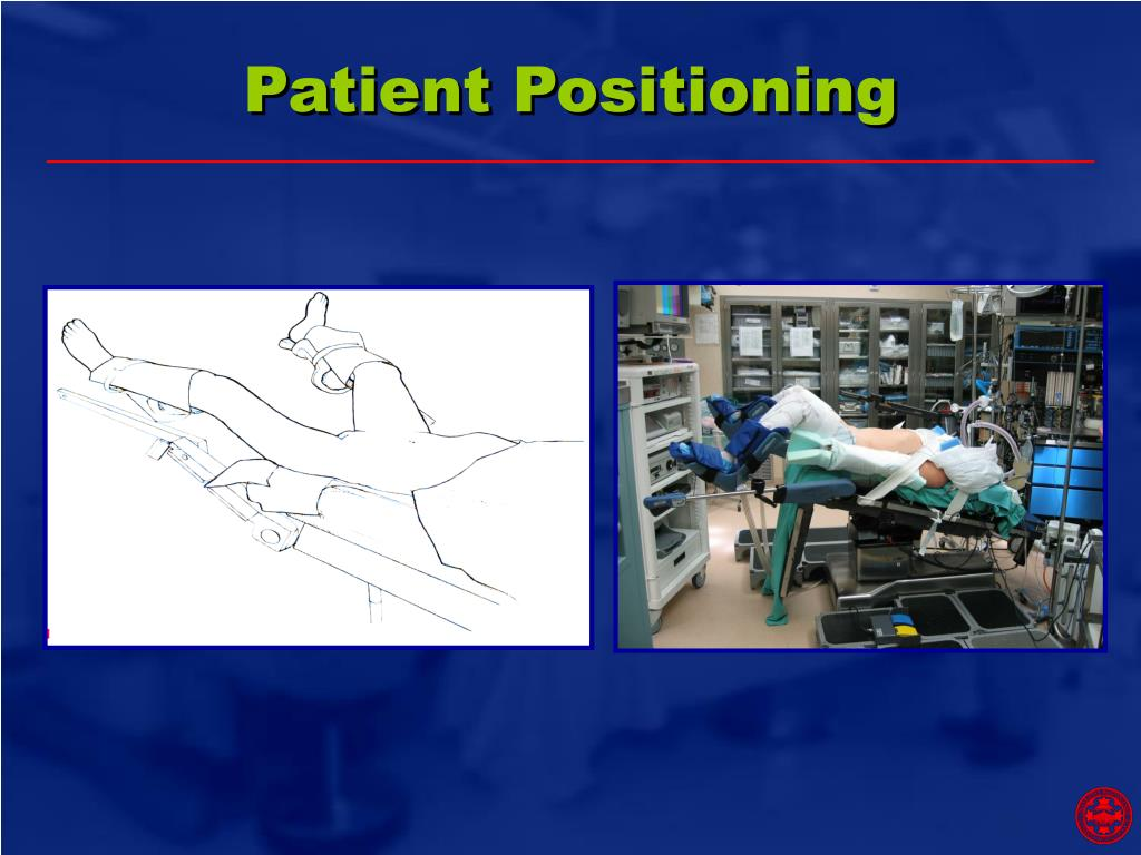 Ppt Robotic Surgery Surgery Of The Future Powerpoint