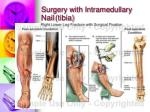 surgery with intramedullary nail tibia
