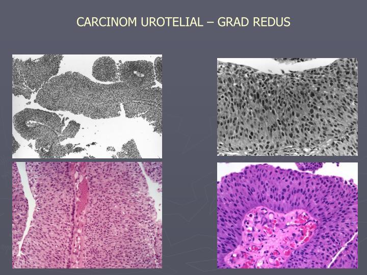 urotelialt karcinom