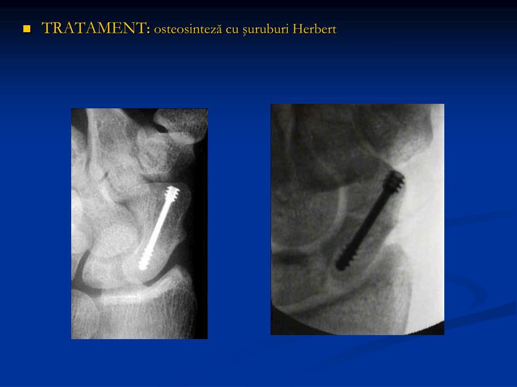 Fracturile extremității distale radiale » Centrul Medical MICROMEDICA