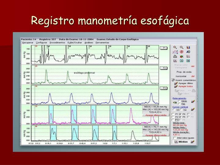 Registro manometría esofágica