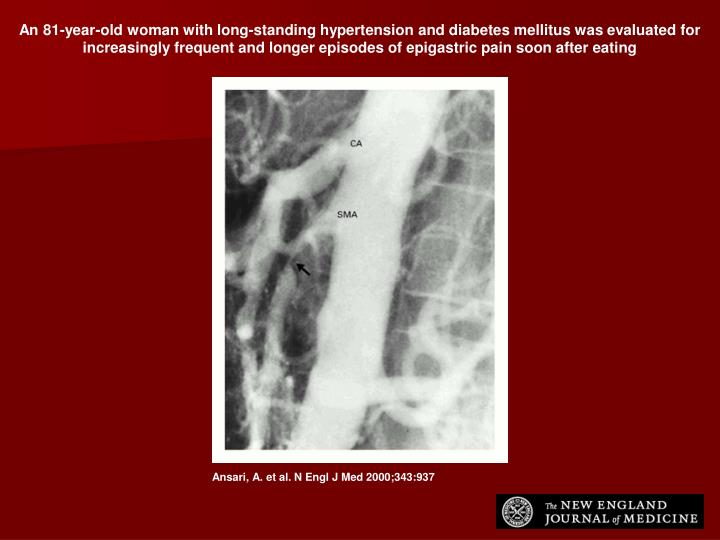 An 81-year-old woman with long-standing hypertension and diabetes mellitus was evaluated for increasingly frequent and longer episodes of epigastric pain soon after eating