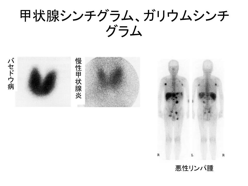 グラフィー ガリウム シンチ