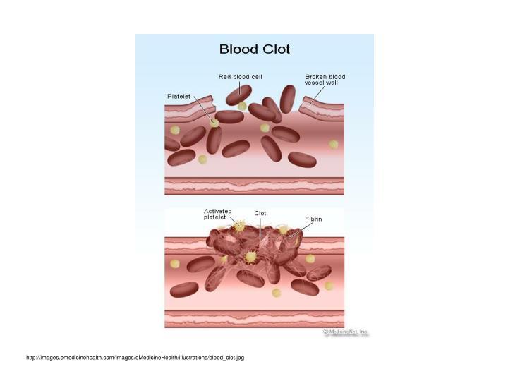 http://images.emedicinehealth.com/images/eMedicineHealth/illustrations/blood_clot.jpg