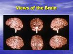 views of the brain