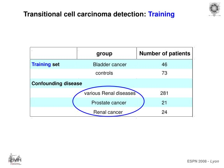 Transitional cell carcinoma detection: