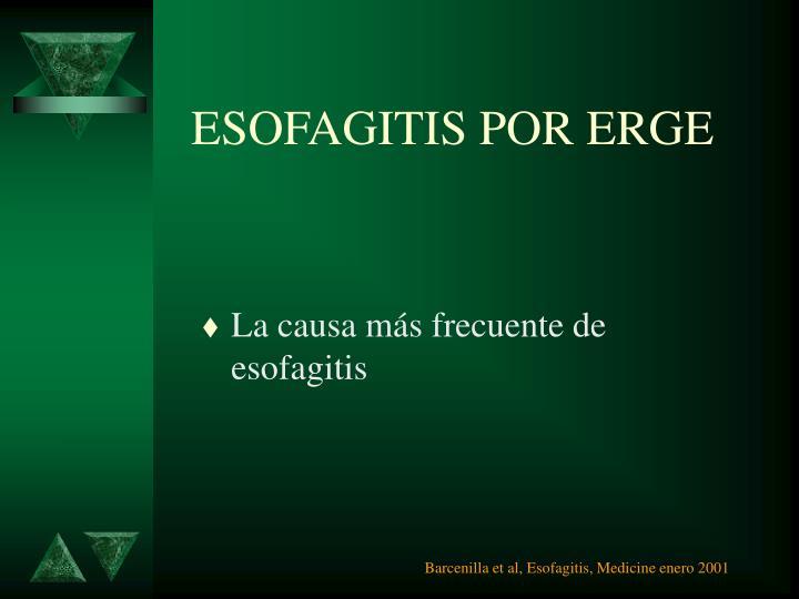 ESOFAGITIS POR ERGE