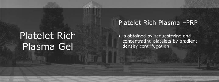 Platelet Rich Plasma –PRP