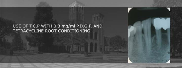 USE OF T.C.P WITH 0.3 mg/ml P.D.G.F. AND TETRACYCLINE ROOT CONDITIONING.