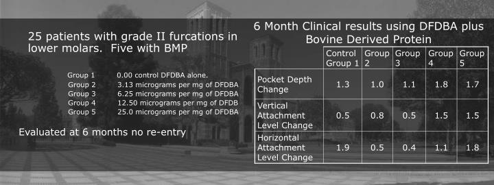 6 Month Clinical results using DFDBA plus Bovine Derived Protein