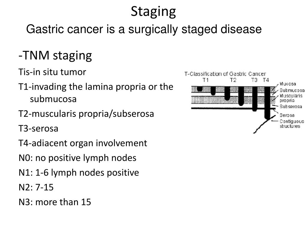 PPT - 1  Stomach and 2  esophageal cancer PowerPoint