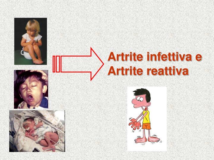 Artrite infettiva e