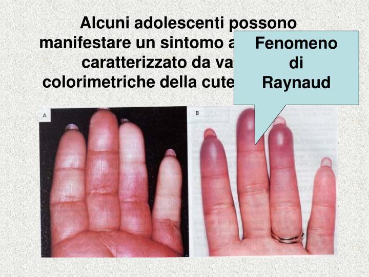 Alcuni adolescenti possono manifestare un sintomo alle estremità, caratterizzato da variazione colorimetriche della cute e parestesie