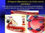 el impacto hipertensivo y los lechos arterio arteriolares1