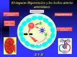 el impacto hipertensivo y los lechos arterio arteriolares10
