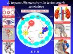 el impacto hipertensivo y los lechos arterio arteriolares11