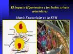 el impacto hipertensivo y los lechos arterio arteriolares18
