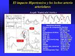 el impacto hipertensivo y los lechos arterio arteriolares33