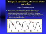 el impacto hipertensivo y los lechos arterio arteriolares36
