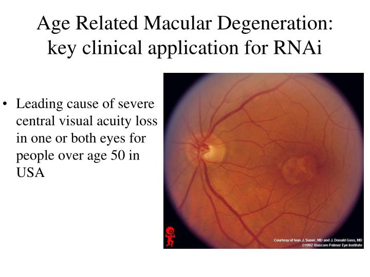 age related macular degeneration Age-related macular degeneration is a disease that causes blurring of your central vision the blurring happens because of damage to the macula, a small area at the back of the eye  the macula helps you see the fine detail in things that your eyes are focusing on.