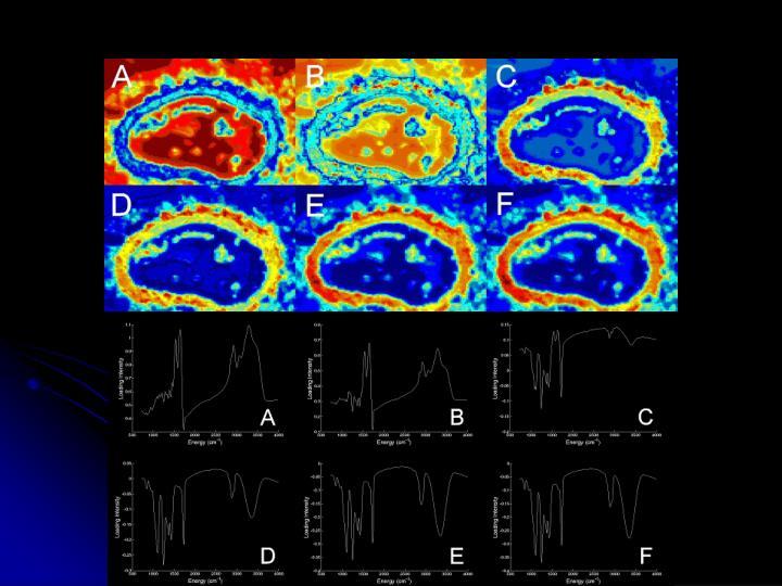 SAQQ analysis of PC1 of x-bk-1