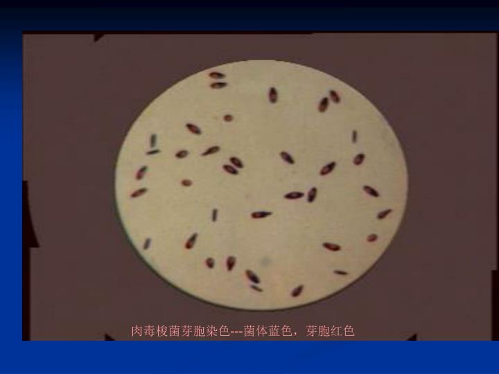 肉毒梭菌芽胞染色