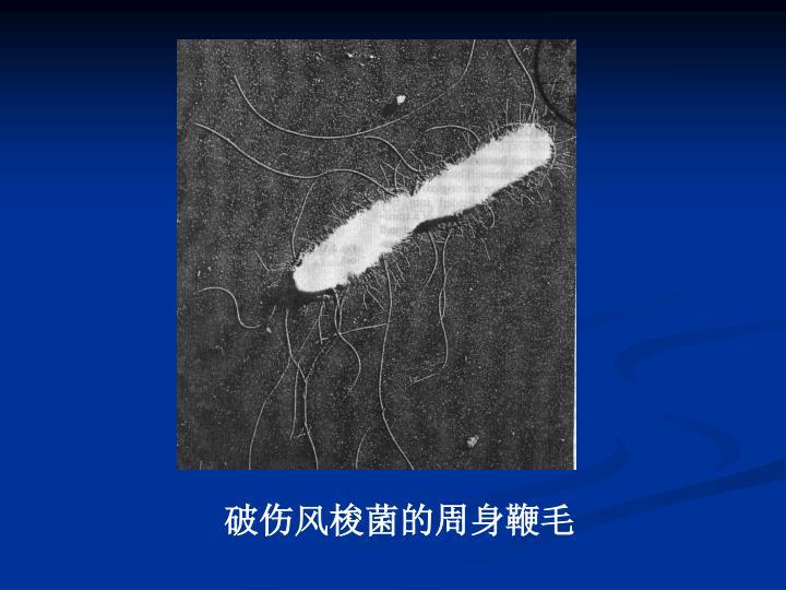 破伤风梭菌的周身鞭毛