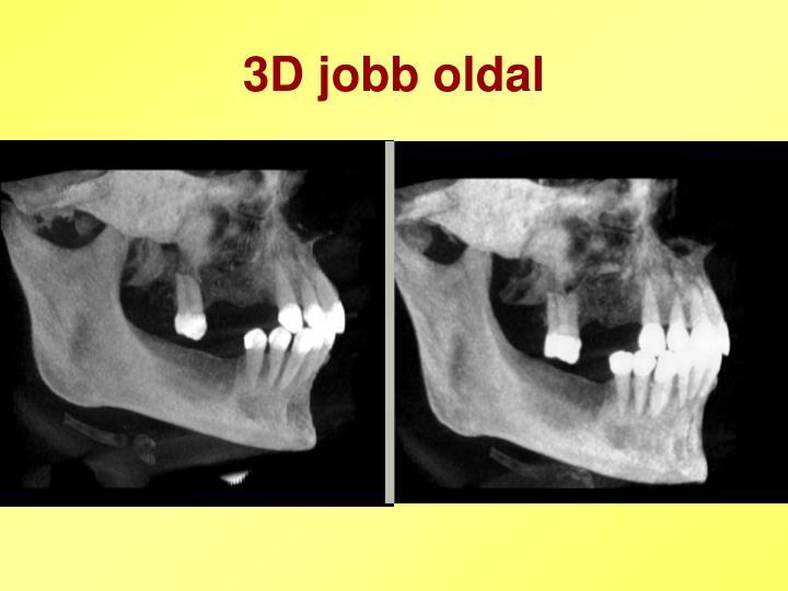 3D jobb oldal