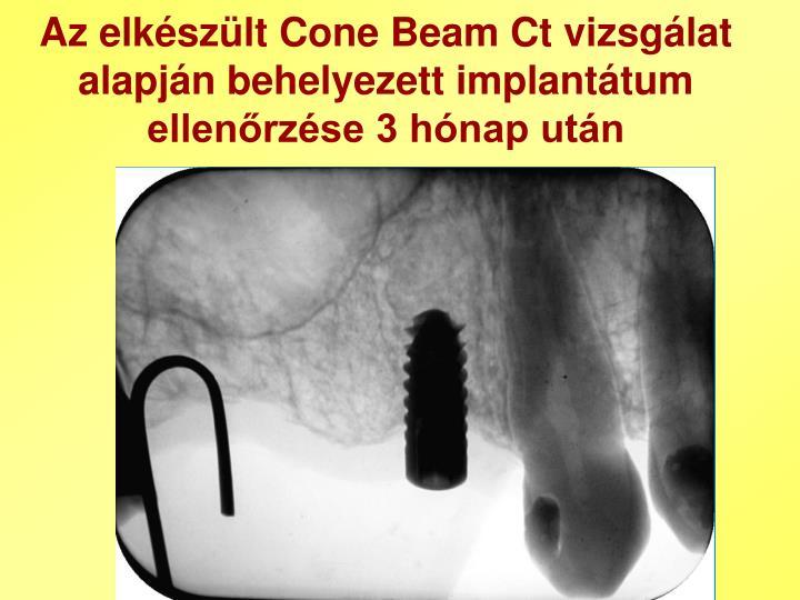 Az elkészült Cone Beam Ct vizsgálat alapján behelyezett implantátum ellenőrzése 3 hónap után