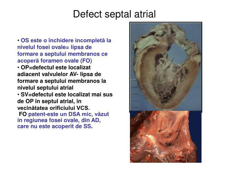 Defect septal atrial